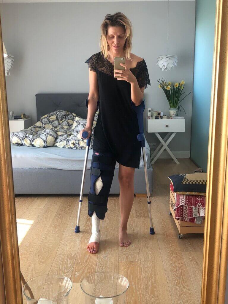 dziewczyna ze złamaną nogą w gipsie i z kulą